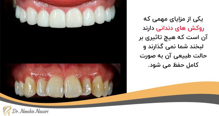 مزیت روکش های دندانی