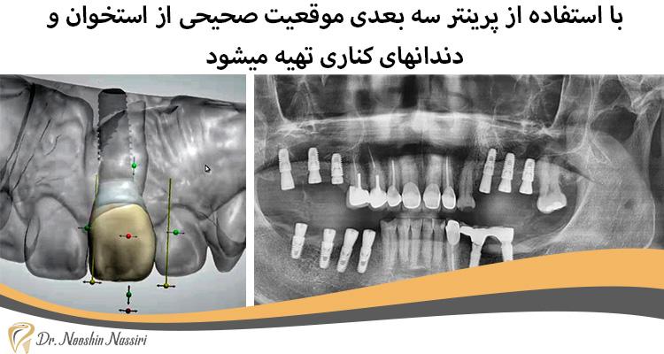 پرینتر سه بعدی دندانپرشکی دیجیتال