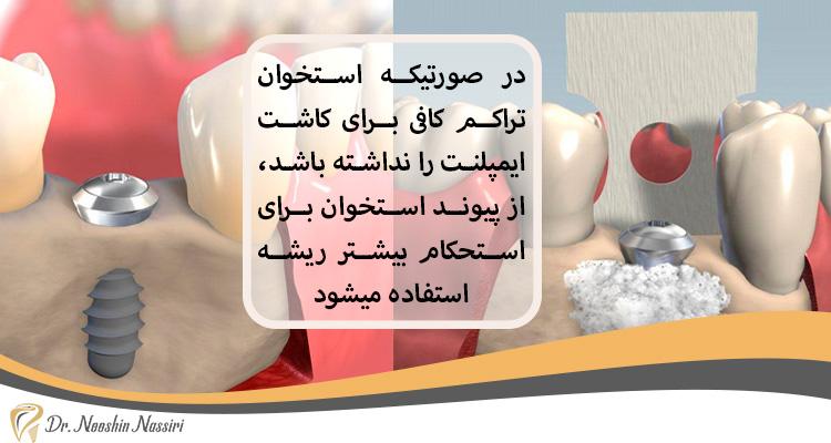 پیوند استخوان در ایمپلنت