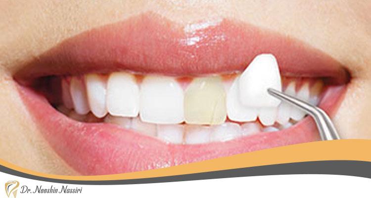 لمینت دندان ها در دندان پزشکی زیبایی