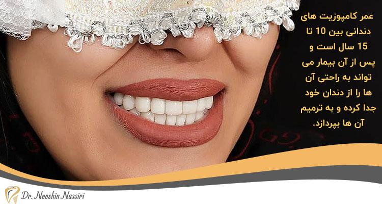 عمر کامپوزیت های دندان