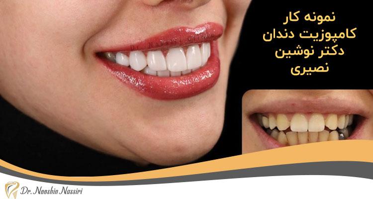 عکس قبل و بعد کامپوزیت دندان دکتر نوشین نصیری