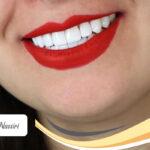 نمونه کار کامپوزیت دندان دکتر نوشین نصیری