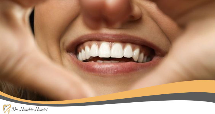 نمونه کامپوزیت دندان