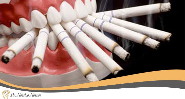 ایمپلنت برای افراد سیگاری