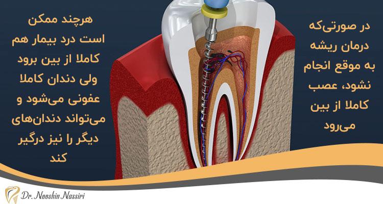 اهمیت درمان ریشه دندان