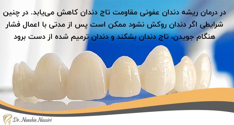 اهمیت روکش دندان بعد از درمان ریشه