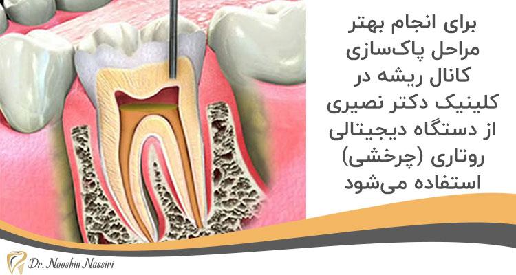 درمان ریشه با دستگاه روتاری در کلینیک دندانپزشکی دکتر نوشین نصیری