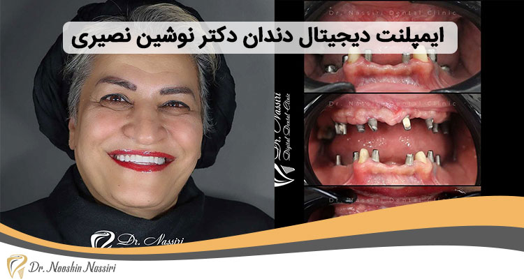 ایمپلنت دیجیتال دندان در کلینیک دکتر نوشین نصیری