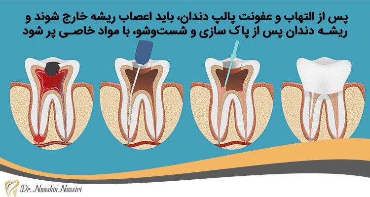 درمان عفونت ریشه دندان