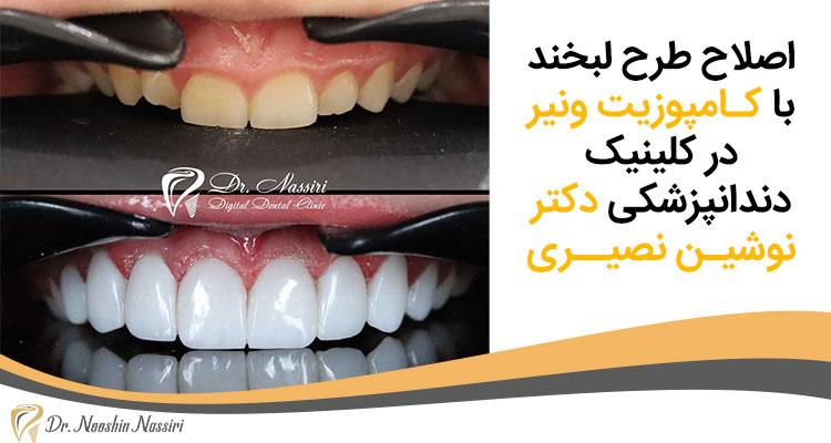اصلاح طرح لبخند با کـامپوزیت ونیر در کلینیک دندانپزشکی دکتر نوشیـن نصیــری