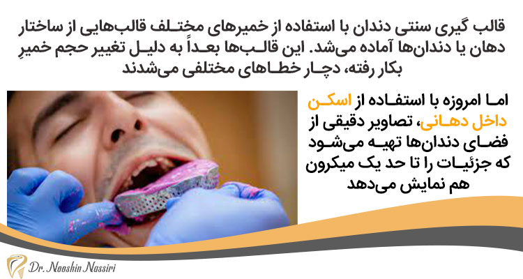 قالب گیری دندان با اسکن داخل دهانی